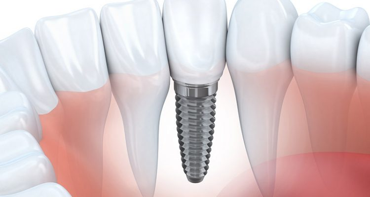 Dental implants at Sydney Smile Centres